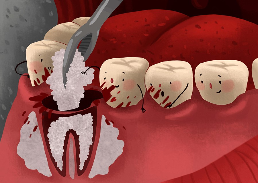 tooth extraction in Jeffersonville